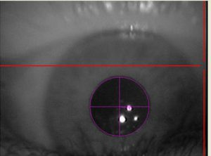 Pupille reflektiert Muster des Eye Trackers