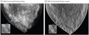 """Synthetische Bilder, die beim Leistungsnachweis und damit der Zulassung eines Geräts für die """"Digital Breast Tomosynthesis (DBT)"""" verwendet wurde"""