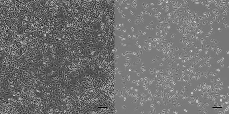 Beim qualitativen Zytotoxizitätstests zeigt sich der Unterschied im Mikroskop von nicht zytotoxisch (links) und zytotoxisch (rechts)